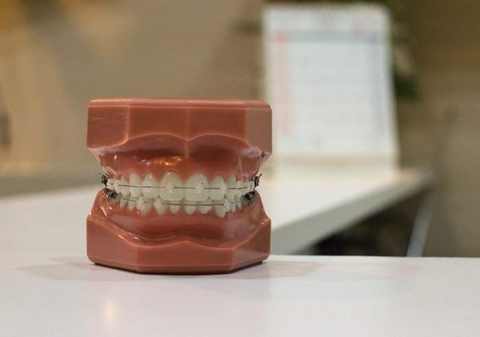 Modern Orthodontics: Less to Brace For
